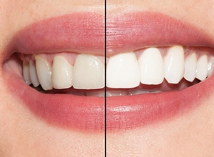 closeup of before and after teeth whitening smile