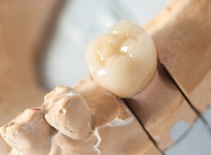 dental crown on a tooth model