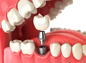 Fairfield dental implants model