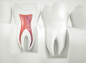 Fairfield root canals model
