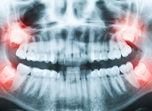 Fairfield wisdom teeth extractions panoramic x-ray